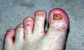 staph infection on toe nails